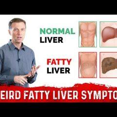 3 Weird Symptoms of a Fatty Liver