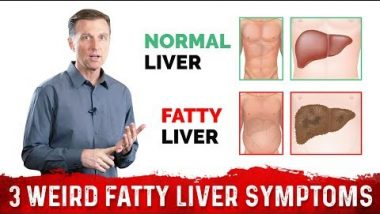 3 Weird Symptoms of a Fatty Liver