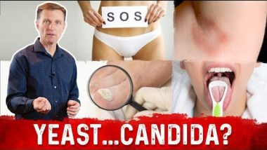 Yeast Infection vs Candida Infection: Is there a Difference?